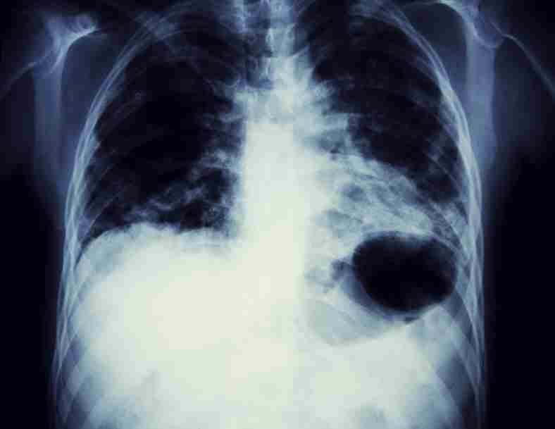 black and white x ray image of a sternum and lung